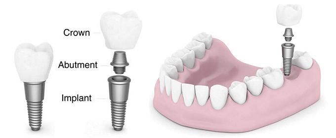 implant 4